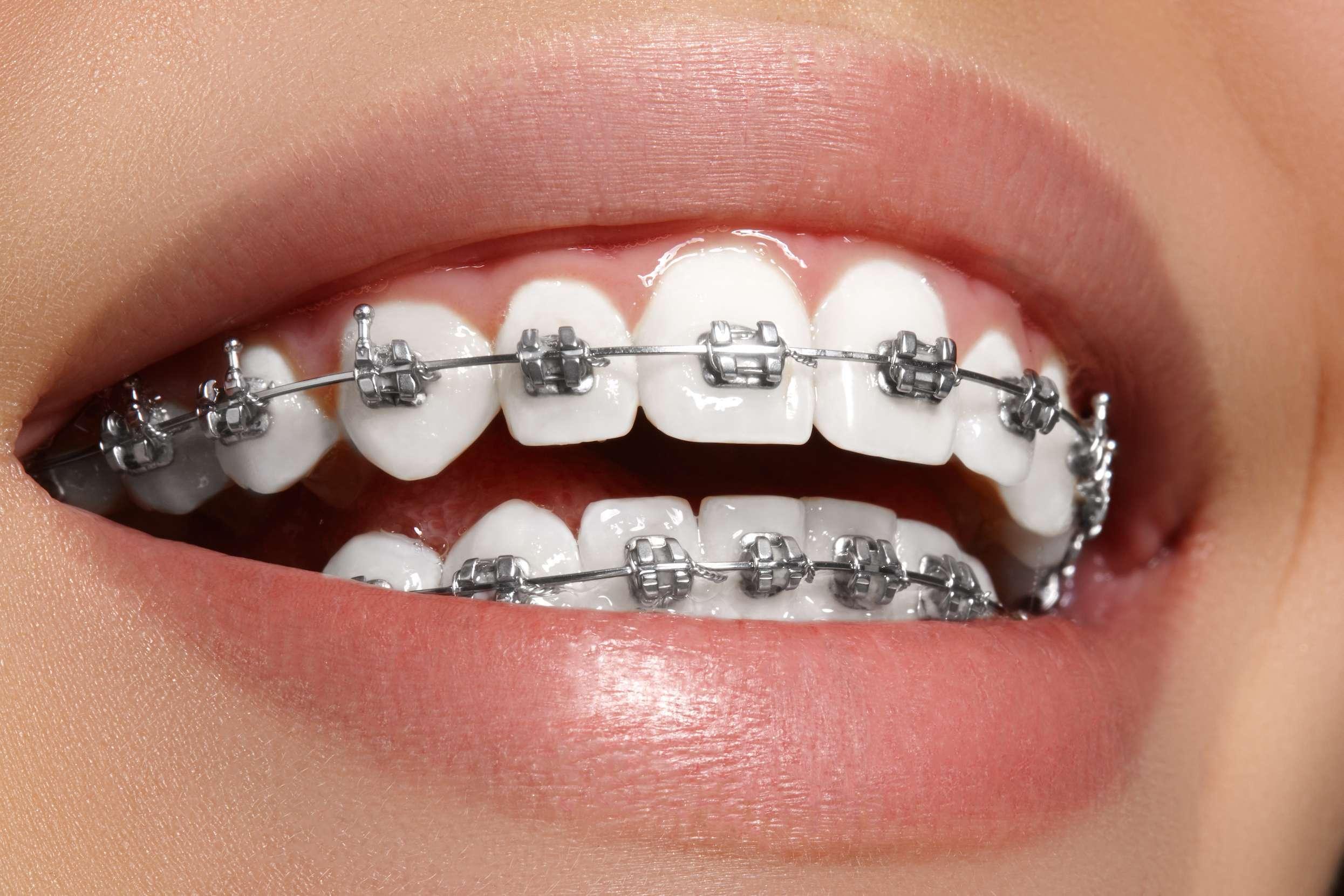 aparelho de dente