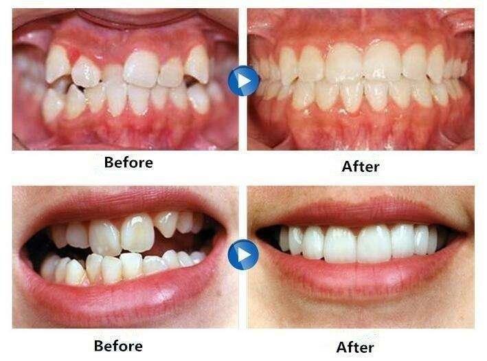 aparelho de dente invisível