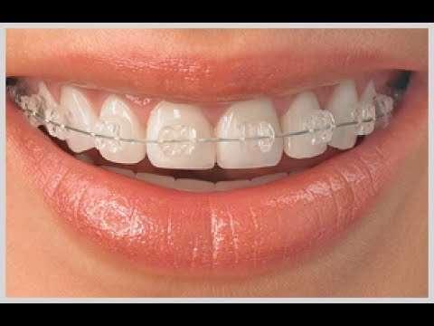 aparelho dentário transparente