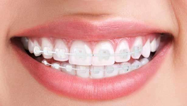 aparelho odontológico estético