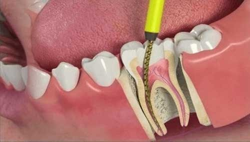 canal dente aberto