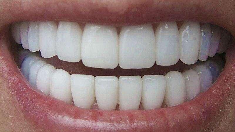 capa para dentes de porcelana