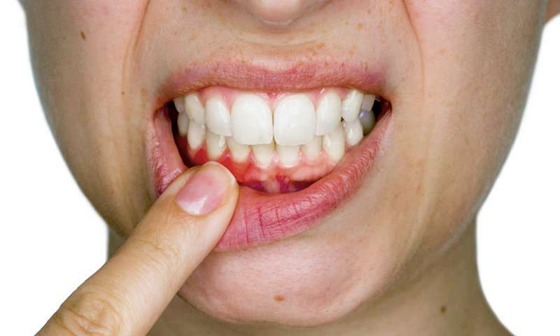 carie dentaria tratamento