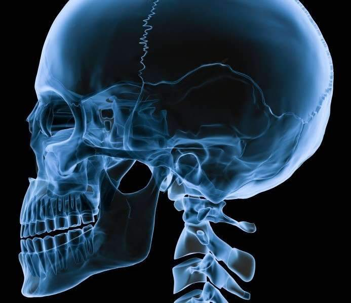 cirurgia crânio maxilo facial