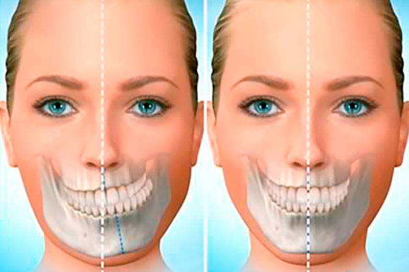 Cirurgia de arcada dentária