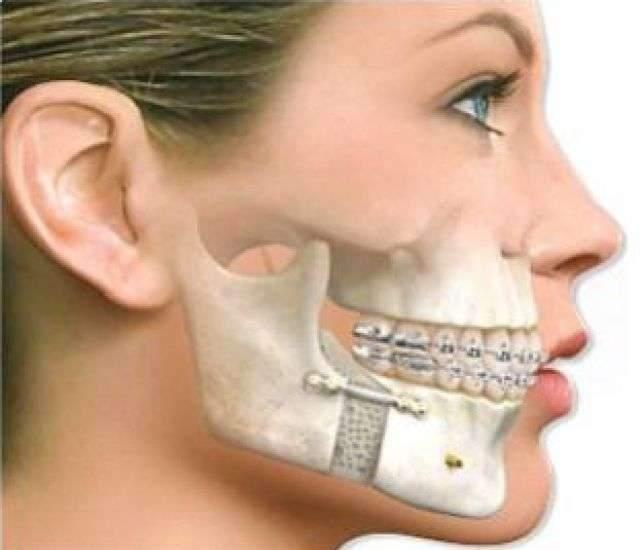 Cirurgia de bucomaxilo