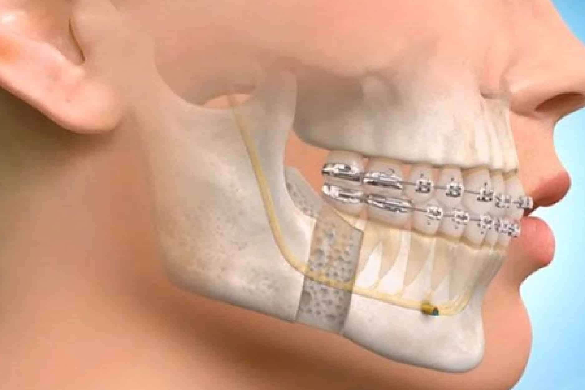 cirurgia de correção do maxilar