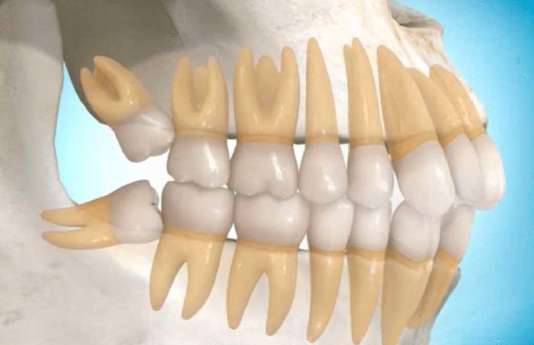 Cirurgia de extração de siso incluso