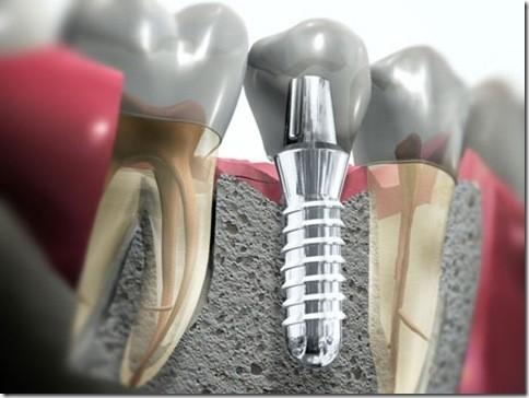 cirurgia implante dental