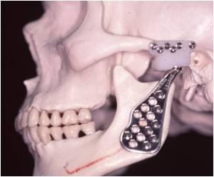 cirurgia maxilar atm