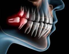 cirurgia oral menor