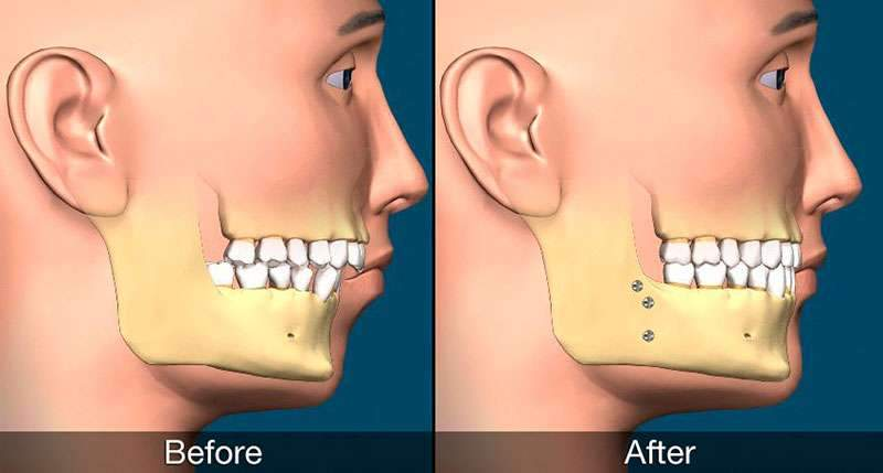 Cirurgia ortognatica bimaxilar