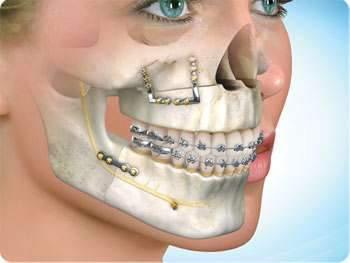 cirurgia ortognatica mordida aberta