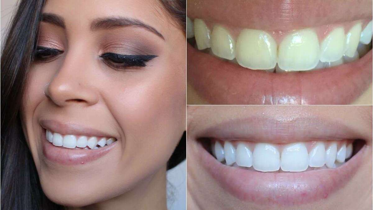 clareamento dental consultório