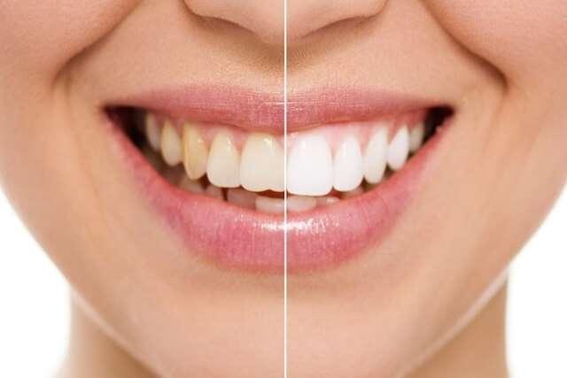 clareamento dos dentes