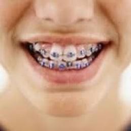 clinica implante dentário