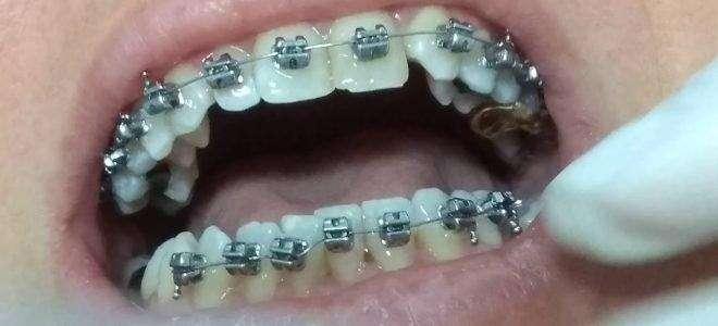 Colocação de aparelho dentário