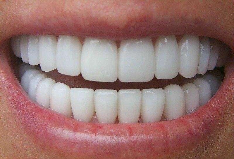 colocar facetas nos dentes