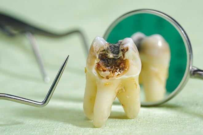dente com cárie profunda