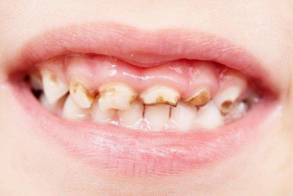 dentes cariados