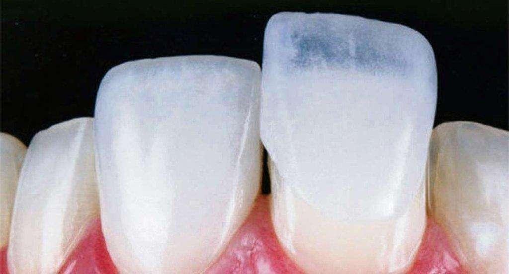 dentes com lente de contato