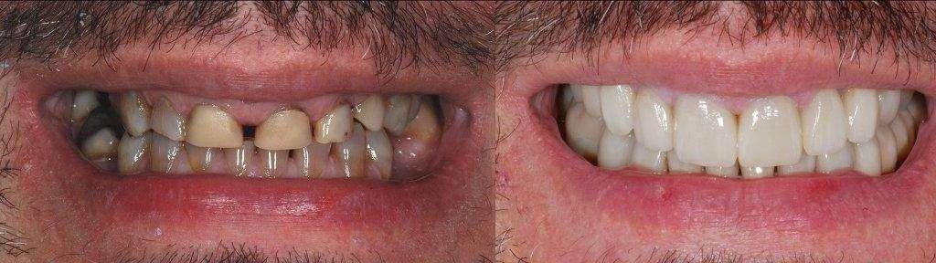dentes facetas de porcelana