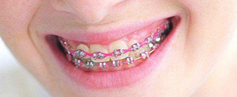 especialista em aparelho dentário
