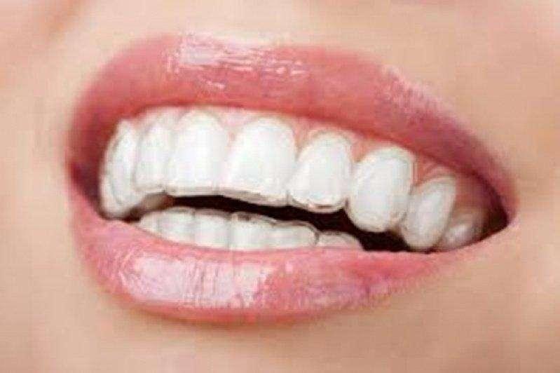 faceta dentaria quanto custa