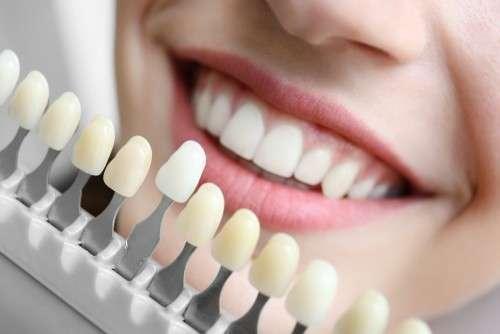 facetas e lentes de contato dental