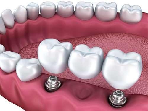 implante de dente