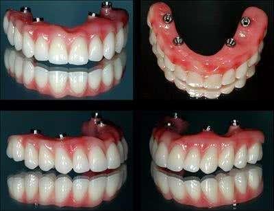 implante dentário superior