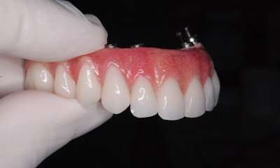 implante total dos dentes