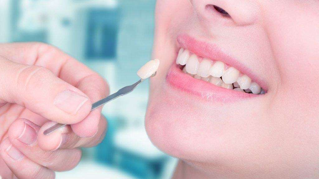 laminas de porcelana para dentes