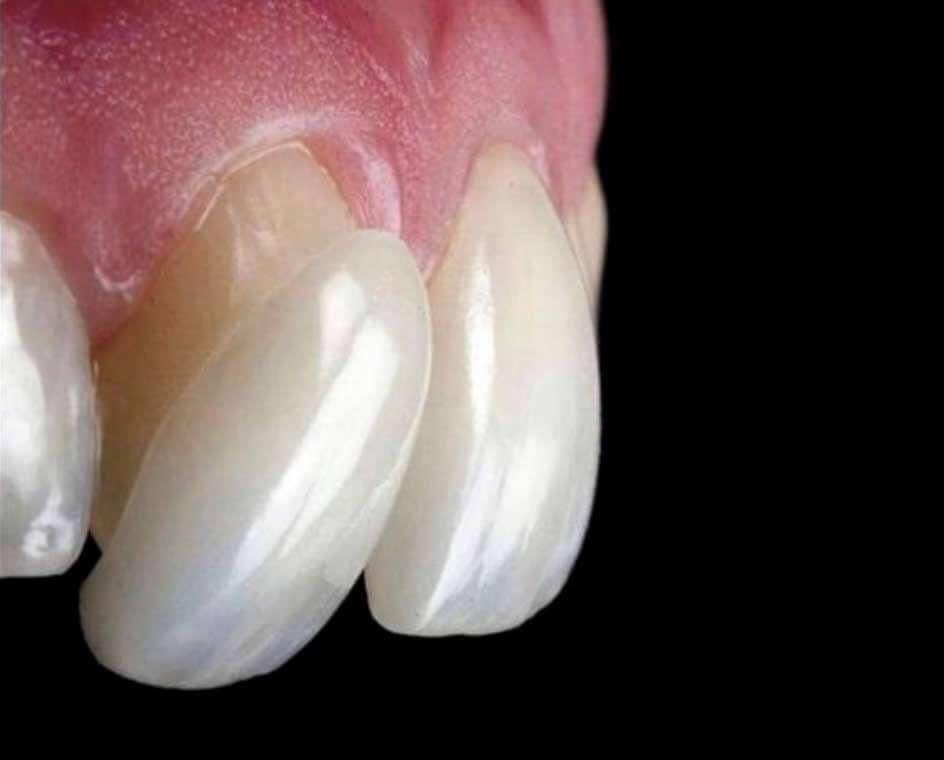 Lente de contato dental durabilidade