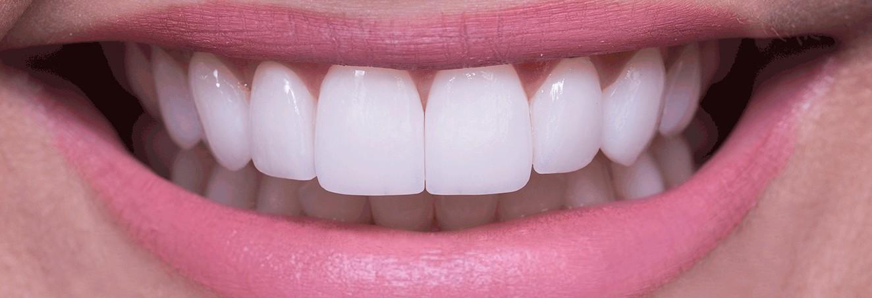 Lente de contato nos dentes quanto custa