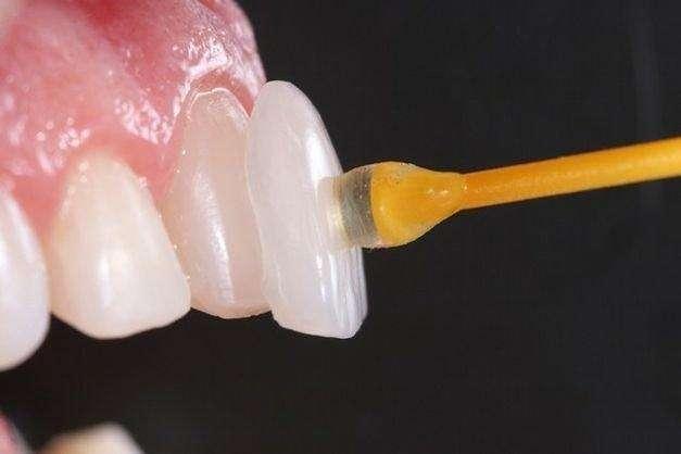 lente dentária
