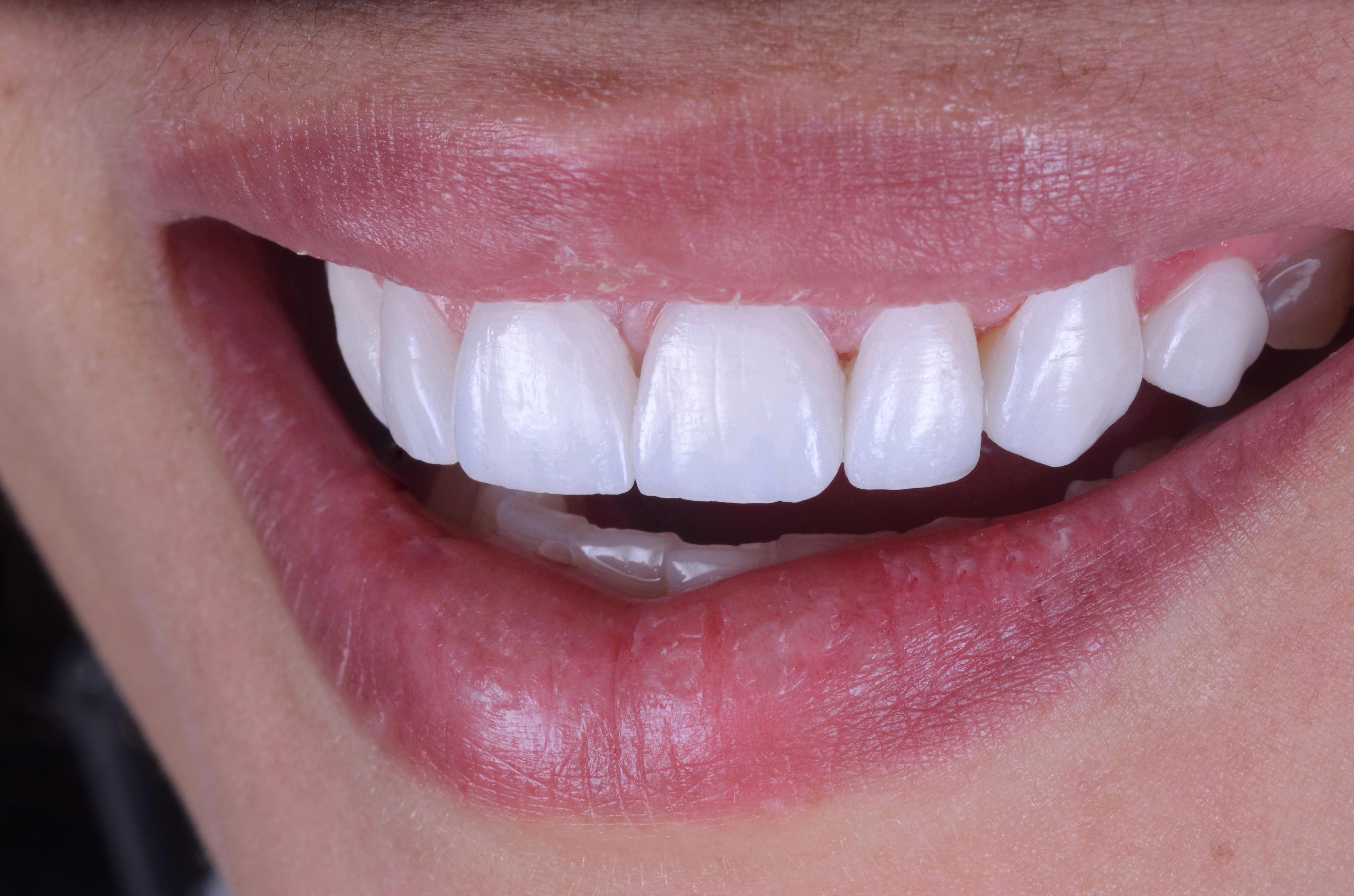 lentes de contato dentais em porcelana