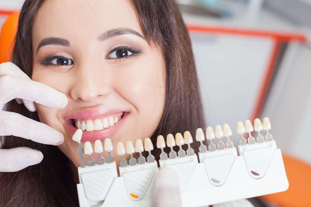 lentes de contato dentária