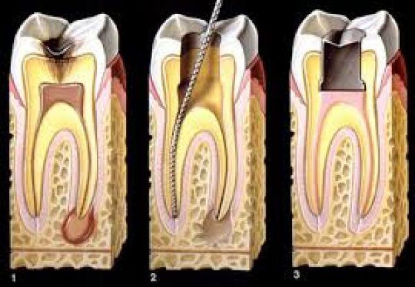 lesões endo periodontais