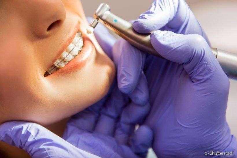manutenção de aparelho dentário