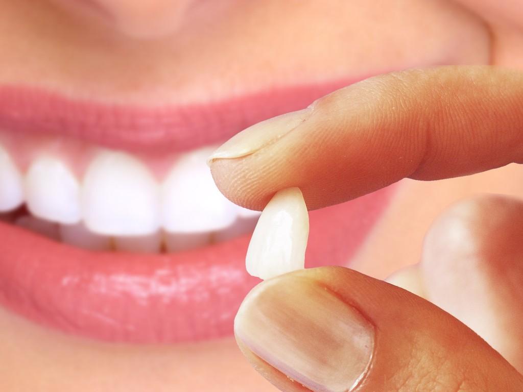 Orçamento lentes de contato dental