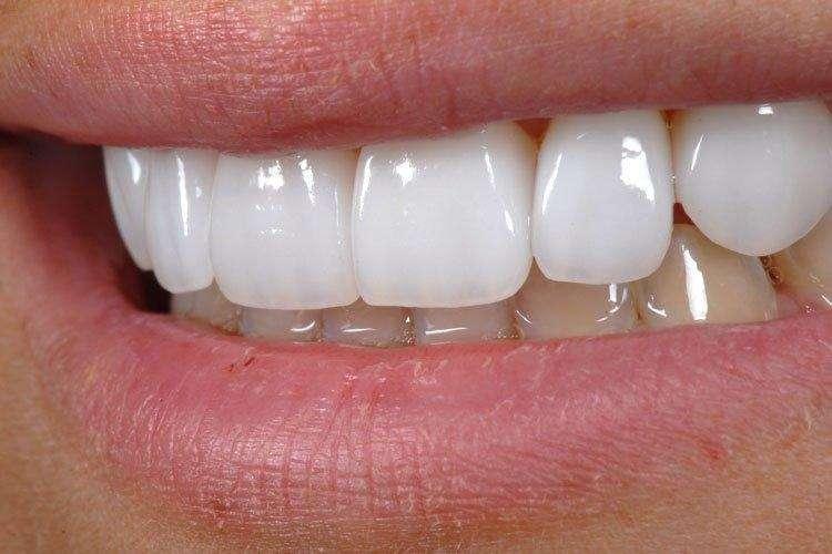 placas de porcelana para dentes