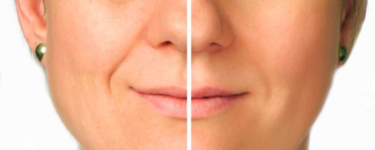 preenchimento bigode chinês