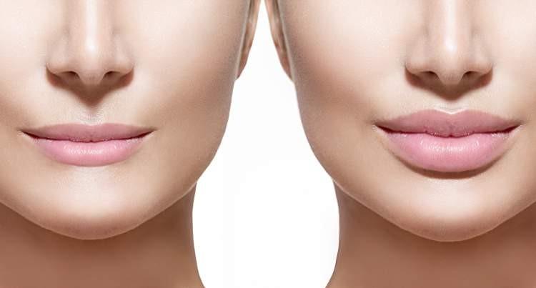 preenchimento labial inchaço