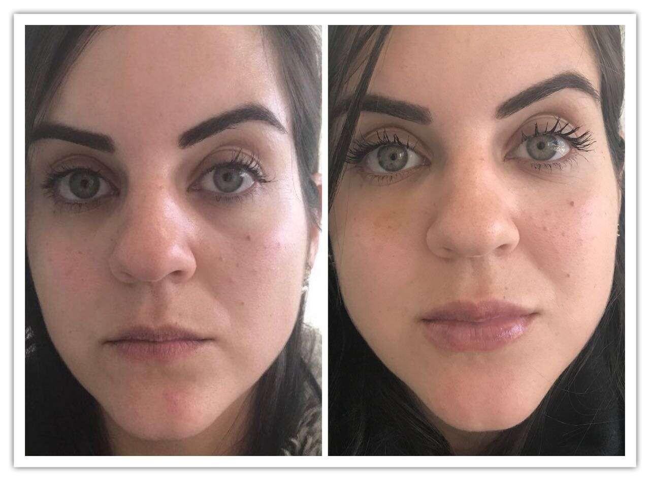 preenchimento olheiras com gordura