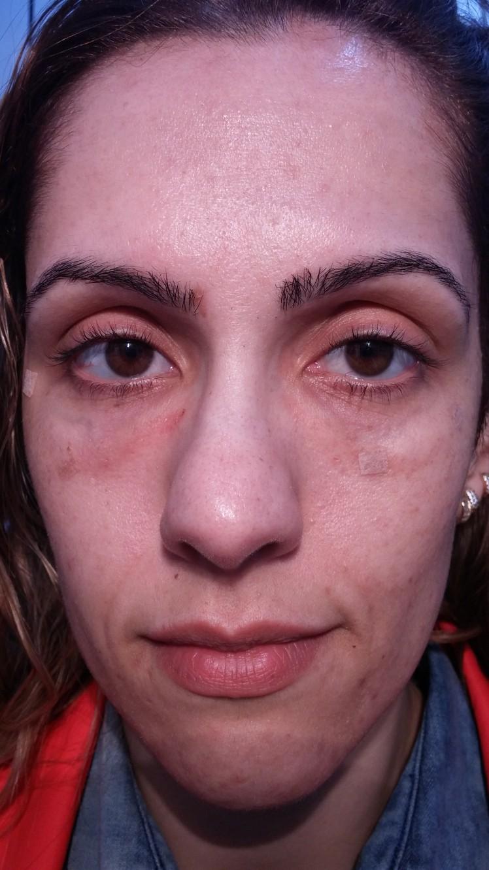 preenchimento olheiras inchaço