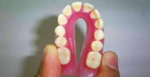 prótese de silicone dentária