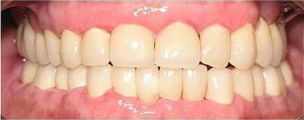 prótese fixa dentária