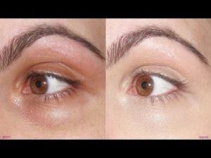 Tratamento a laser para olheiras
