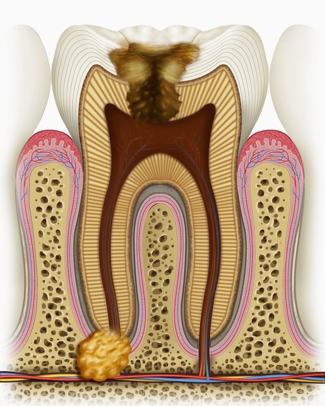 tratamento de canal sem dor